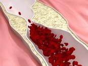 remedios arteriosclerosis