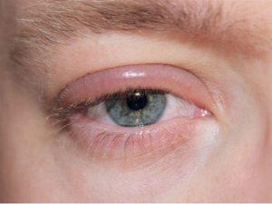 remedios blefaritis