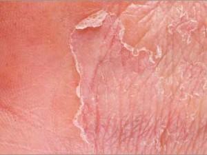 remedios eczema