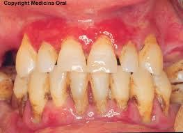 remedios para la gingivitis