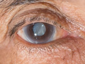 remedios glaucoma