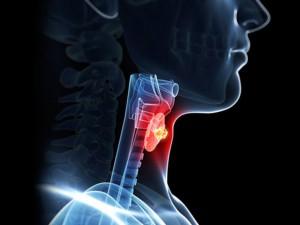 remedios laringitis