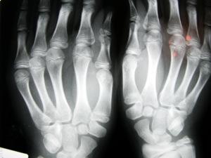 remedios osteopenia