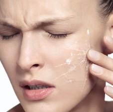 remedios piel sensible