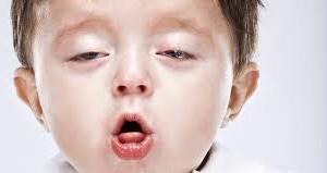 remedios para la tos ferina