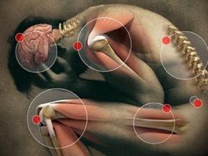 remedios debilidad muscular