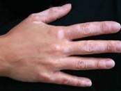 remedios vitiligo