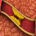 Remedios para bajar el colesterol malo
