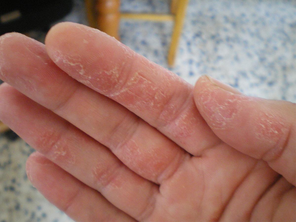 El tratamiento de la eccema por el aceite de girasol
