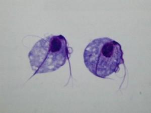 remedios tricomoniasis