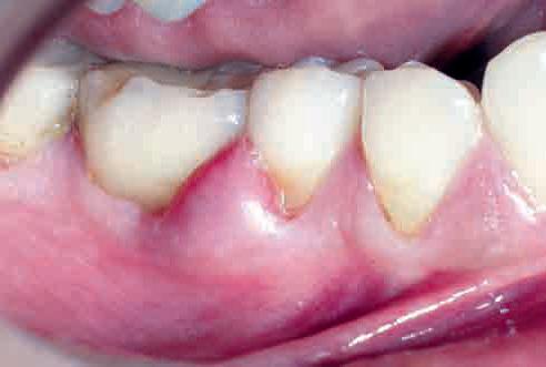 remedios para el absceso dental