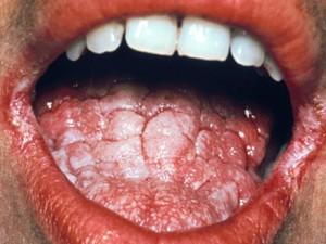 remedios para la infección por levadura