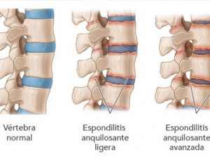 remedios espondilitis