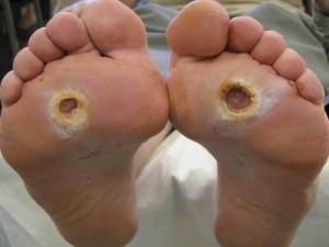 remedios gangrena