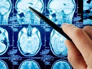 remedios paralisis cerebral