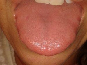 remedios para la lengua inflamada