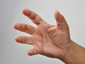 remedios para la rigidez en las manos