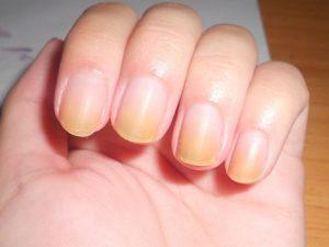 remedios para uñas amarillas
