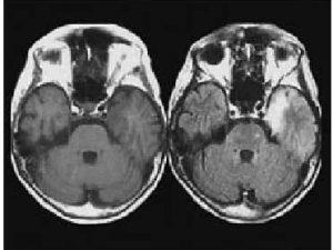remedios encefalitis