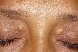 remedios colesterol en los ojos