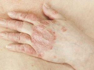 remedios enfermedad autoinmune