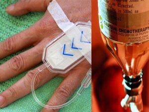 remedios quimioterapia