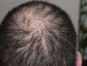 efectos adversos del selenio