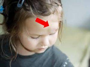 golpe en la cabeza en niños