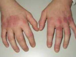 remedios fiebre reumatica