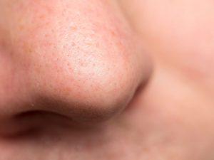 remedios para pérdida del olfato