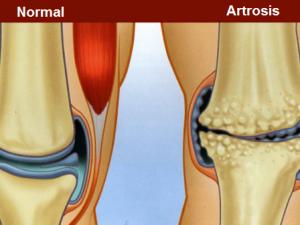 remedios para la artrosis