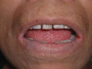 remedios boca seca