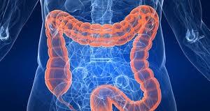 remedios para el cáncer de colon