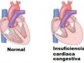insuficiencia cardiaco