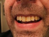 remedios dientes manchados