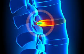 remedios hernia discal