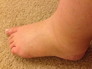 Remedios para la hinchazón de pies en el embarazo