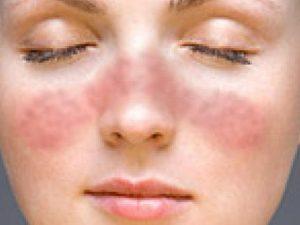 remedios lupus