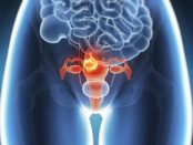 remedios para miomas grandes uterinos