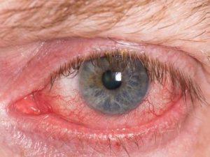 remedios ojos con irritación