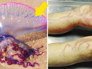 remedios picadura de medusa