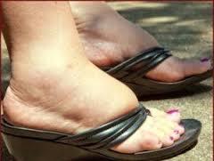 remedos pies hinchados