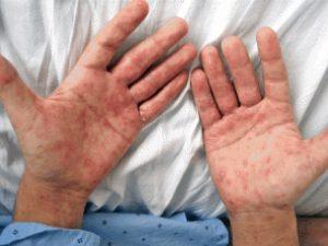 Remedios caseros para la sifilis