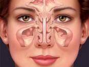 remedios sinusitis