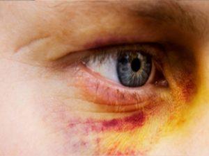 remedios para ojos morados