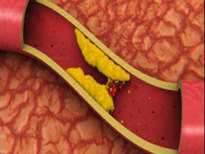 remedios colesterol