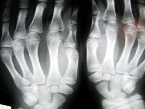 remedios para osteopenia