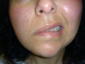 remedios paralisis facial
