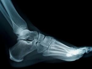 remedios espolones óseos