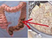 remedios para la limpieza del colon